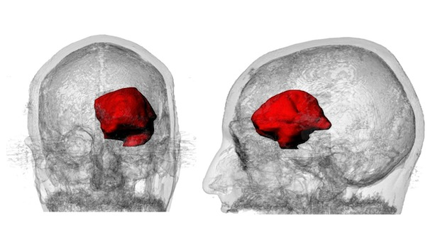 Data helped Steven Keating visualize the brain tumor in 3D (generated by Steven in collaboration with Dr. James Weaver and Ahmed Hosny [Wyss Institute] with MRI data from Brigham and Women's Hospital [Dr. Ennio A. Chiocca's surgical team]).