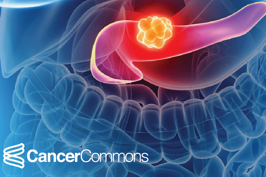 Pancreatic Cancer Survival Rates What Do They Really Mean Cancer Commons